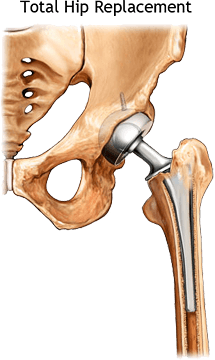 Hip Amp Knee Pain Physical Therapy In Asheville Nc