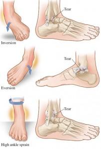 types-ankle-sprain