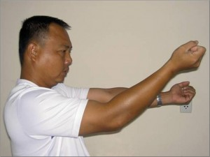 Elbow Contracture