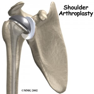 shoulder_arthroplasty