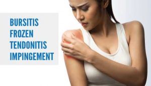 Bursitis Frozen Tendonitis Impingement