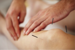 knee dry needling