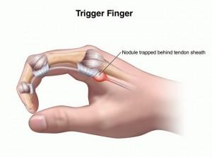 trigger-finger1