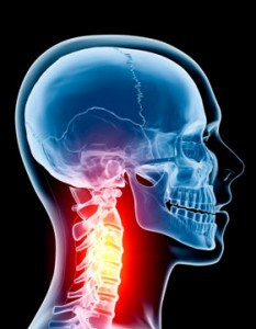 neck osteoarthritis